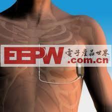 新医疗植入式心脏转复除颤器 恢复患者心脏节律