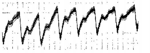 收到的脉搏信号