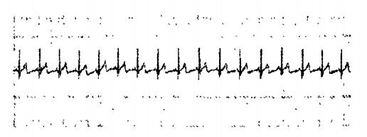 接收到的心电信号