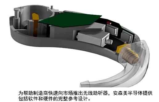 基于数字信号处理(DSP)的混合型无线Ezairo 7150 SL用于先进的助听器