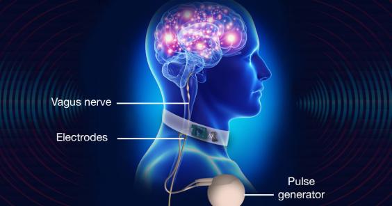 电子技术帮助脑部治疗探索全新领域