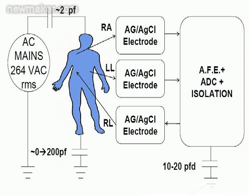 心电图(ECG)设计六大挑战与解决方案