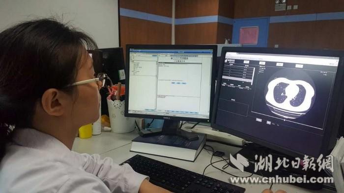 人工智能辅助CT阅片:水平接近主治医师