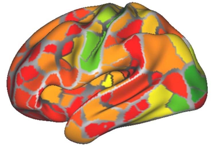 功能连接MRI扫描可以识别各种神经病症