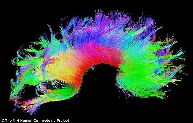 生物识别新进展:可以分析大脑区分双胞胎