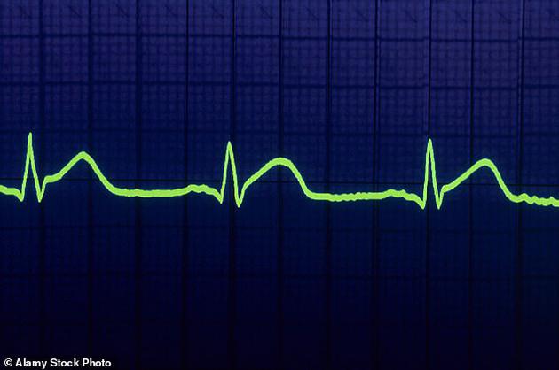 新型激光技术可从两百米外读取心跳识别目标身份