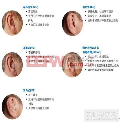 不同助听器选配对比图
